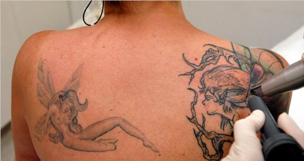 Erasing Tattoos Out Of Regret Or For Tattoo Removal Pictures