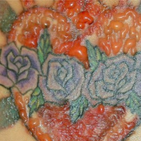 Laser Tattoo Removal Blister Pictures