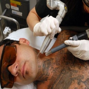 Laser Tattoo Removal Equipments Pictures