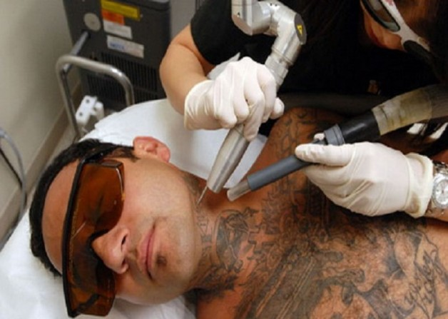 Laser Tattoo Removal Equipments
