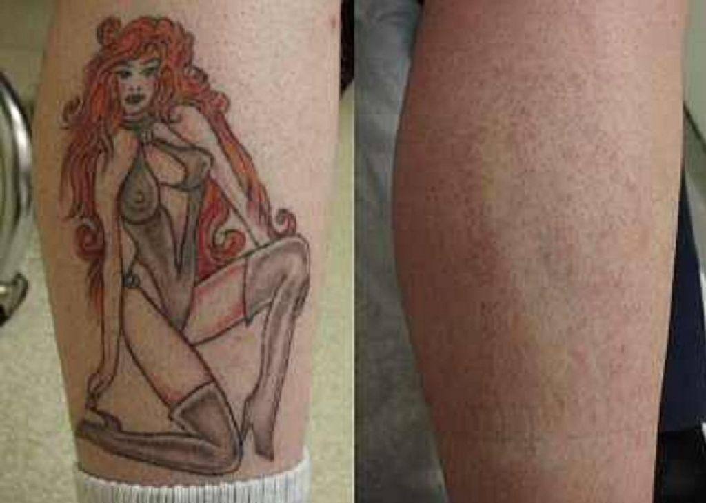 Laser Tattoo Removal Results Pictures