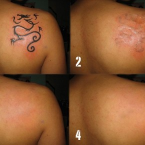 Laser Tattoo Removal Scars Pictures