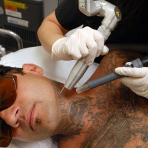 Laser Tattoo Removal Therapy Treatment Pictures