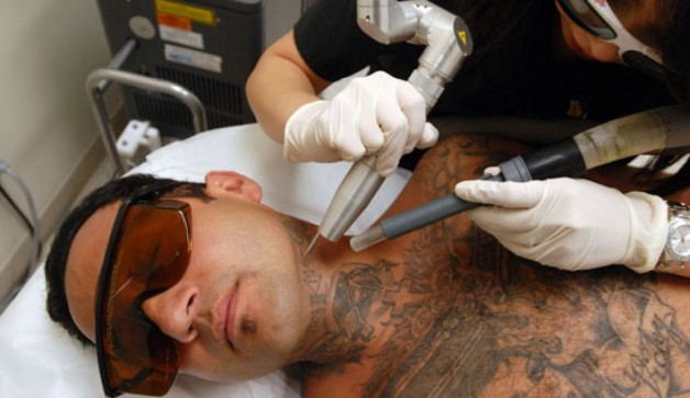 Laser Tattoo Removal Therapy Treatment
