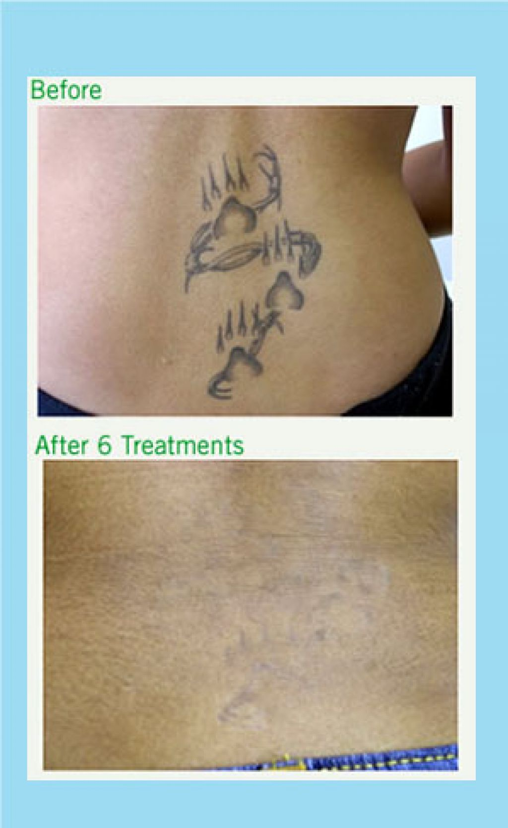 London Laser Tatto Removal After 6 Mounth Pictures