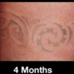 Tattoo Removal Before And After Months Pictures
