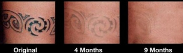 Tattoo Removal Before And After Months