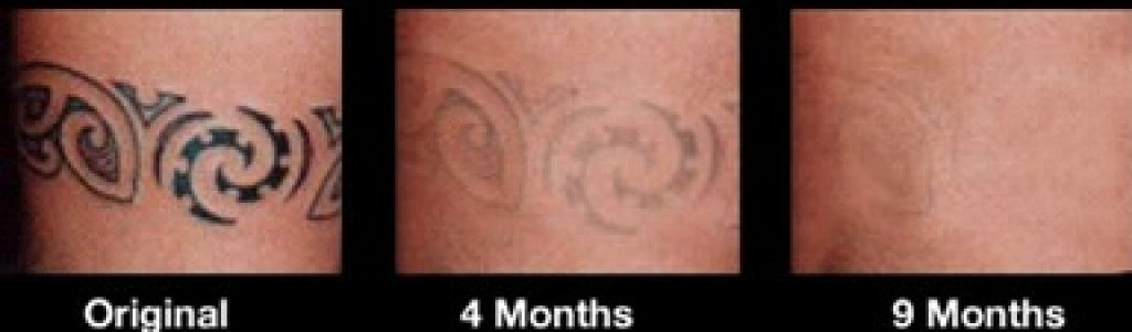 Tattoo professional laser removal treatment for Laser remove tattoo price