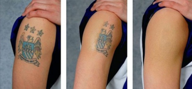 Tattoo Removal Cream From RedSave