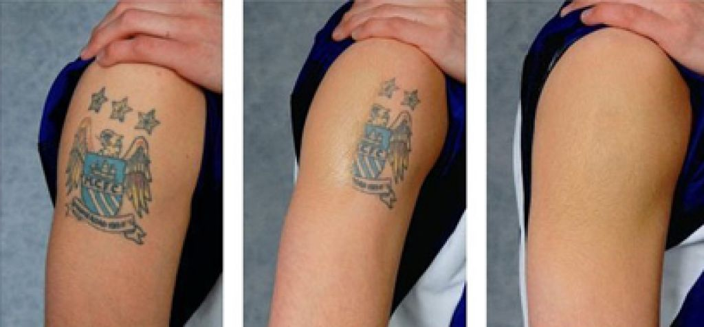 Tattoo Removal Cream From RedSave Pictures