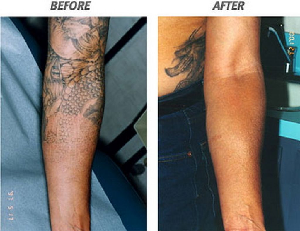 The Risk Of Having Tattoo Laser Removal In Arm Pictures